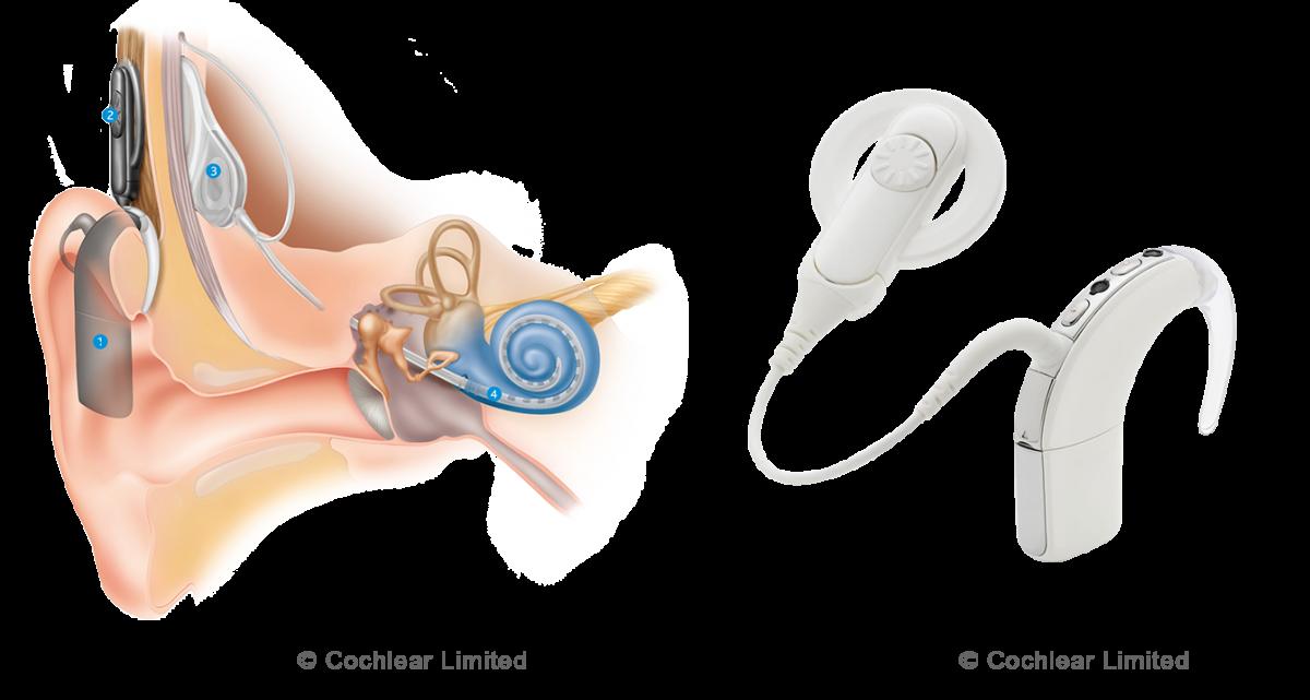 Cochlea_Implantat_0104